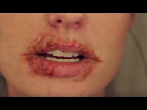 Cold Sore Herpes SFX Halloween Makeup Tutorial 2019 | SMASHINBEAUTY